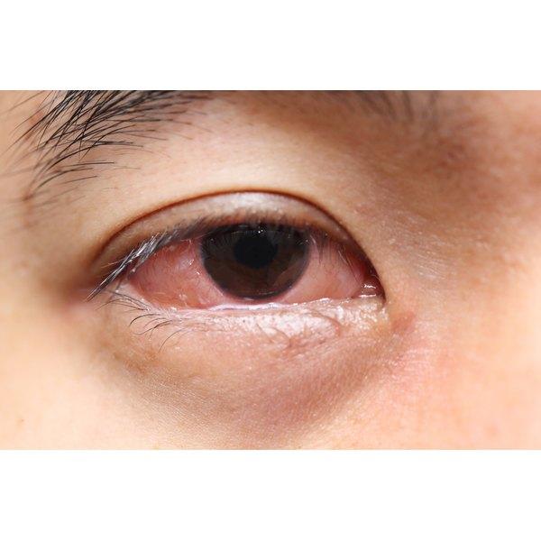 Red, watery eye