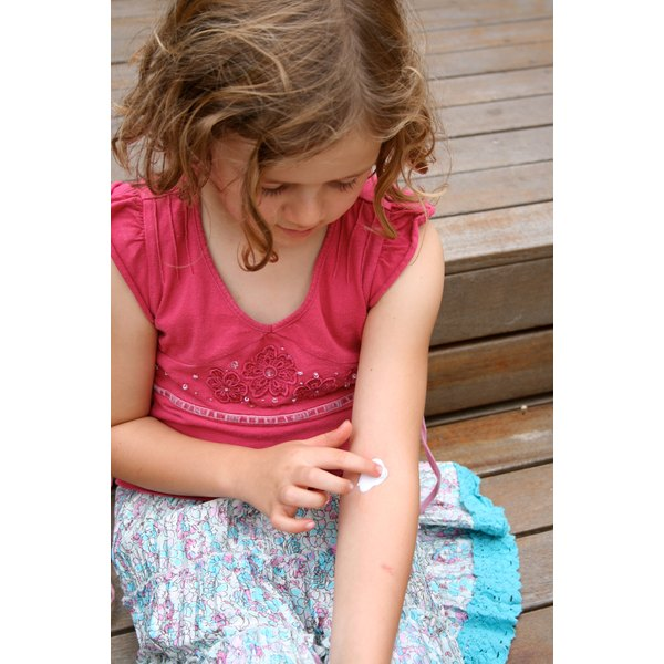 child placing ointment on inner elbow eczema