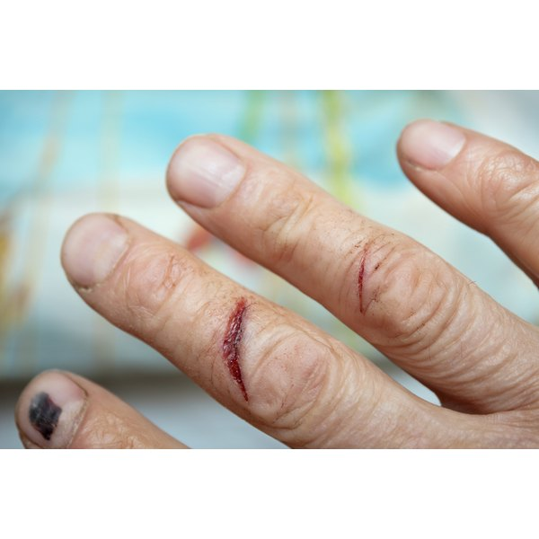 Scars from injury or disease can be lasting.