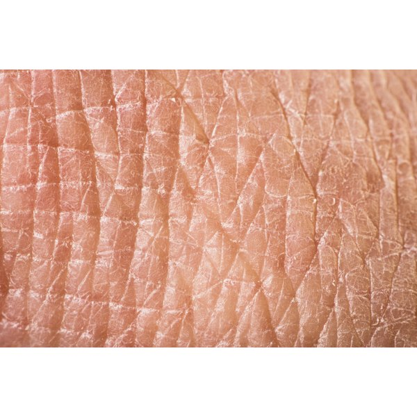 Your arms and hands are a common target for dry skin problems.