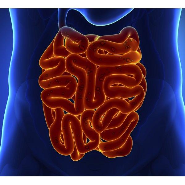 Low-Fiber Diet For Diverticulitis