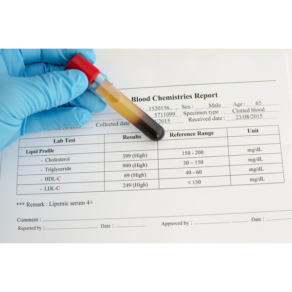A gloved medical hand holding a blood sample over a chart with cholesterol numbers on it.