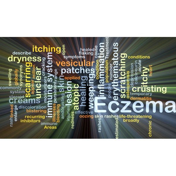 A bleach bath will help kill the infection in an eczema outbreak.