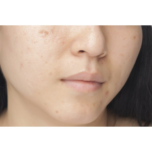 Close up of woman with dark acne spots