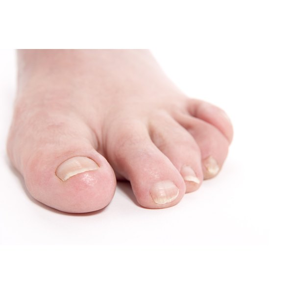 Ingrown toenails are more common than ingrown fingernails.