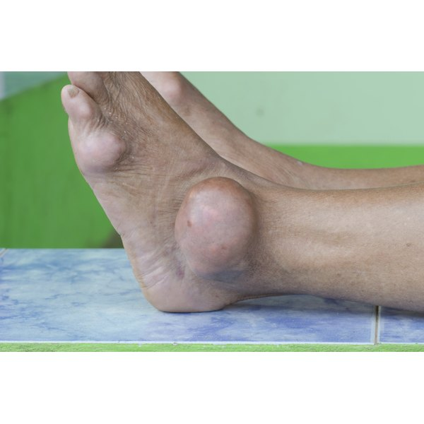 A man is suffering from a gout flare up.