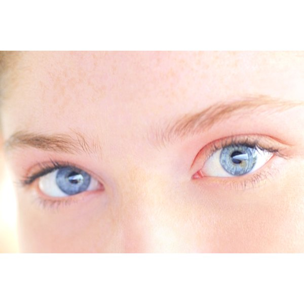 Red eyes and dark circles under the eyes are symptoms of allergic conjunctivitis