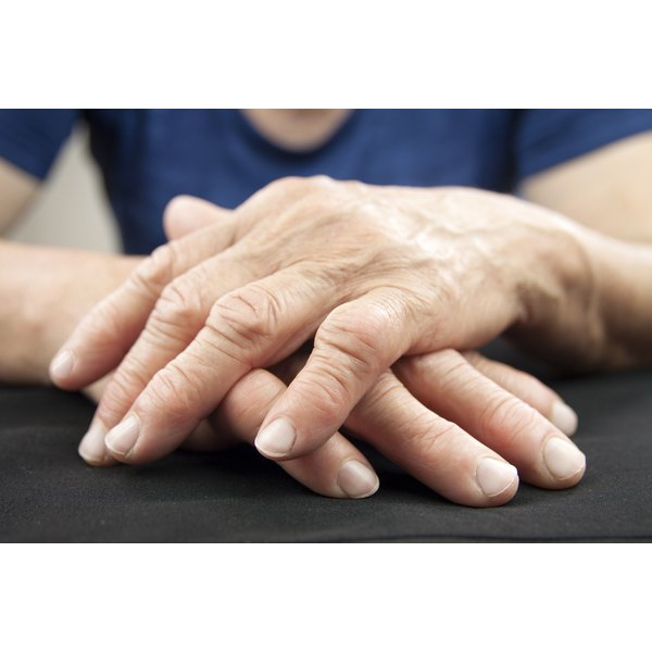 Hand of woman deformed by rheumatoid arthritis.