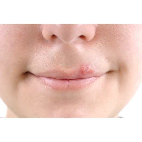 Woman with cold sore
