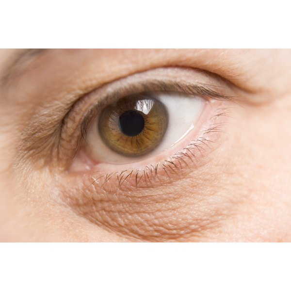 Dark patches under the eyes might be more than tiredness.