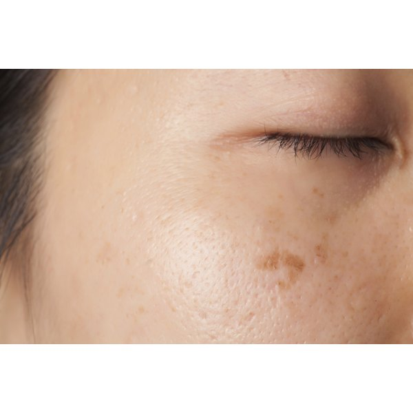 A woman with acne scars on her face.