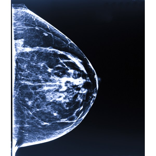 Calcium intake is not commonly associated with breast calcifications.