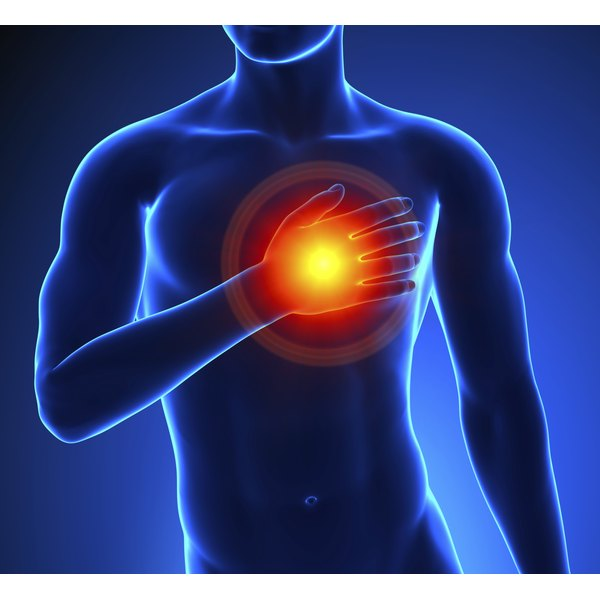 If left untreated, atherosclerosis can lead to a heart attack or stroke.