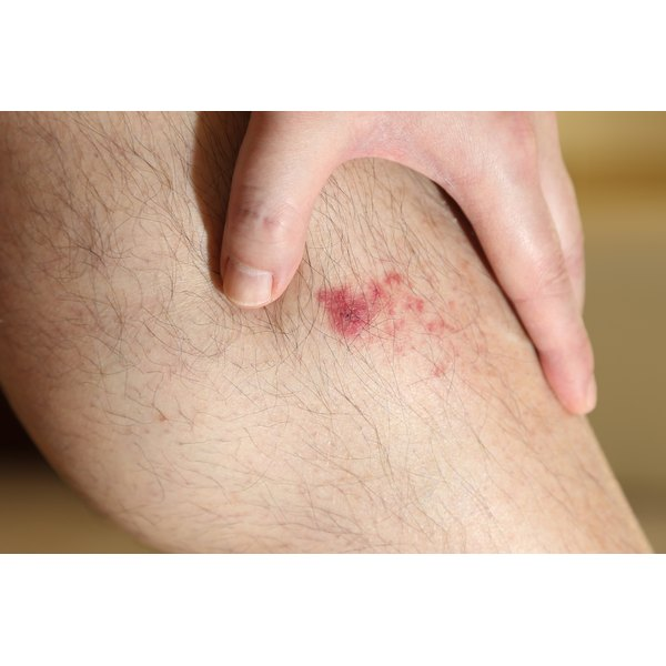 A man has his hand on a pink scar on his leg.