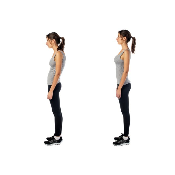 A side-by-side comparison of a woman with good posture and with kyphoscoliosis.