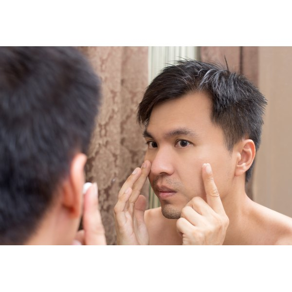 Blue light therapy can treat cystic acne.