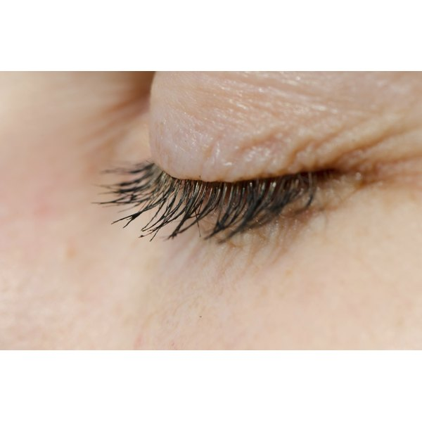 Close-up of a wrinkled eyelid.