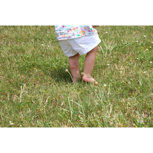 A toddler standing in grass with red marks on his leg.