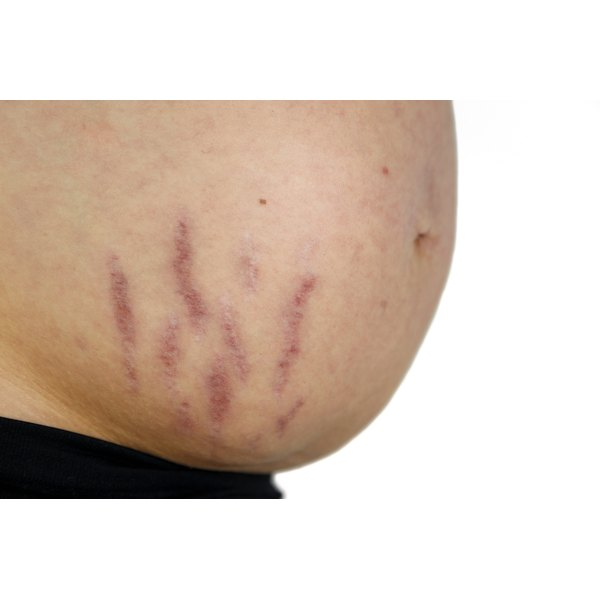 A close-up of a pregnant woman's belly with stretch marks.