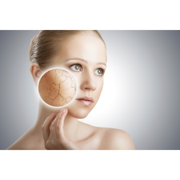 Dehydrated skin can cause discomfort if not treated.