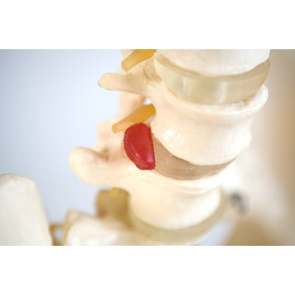 Close up example of a spine with a ruptured disk