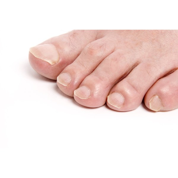 Try home treatments to get rid of foot smell.