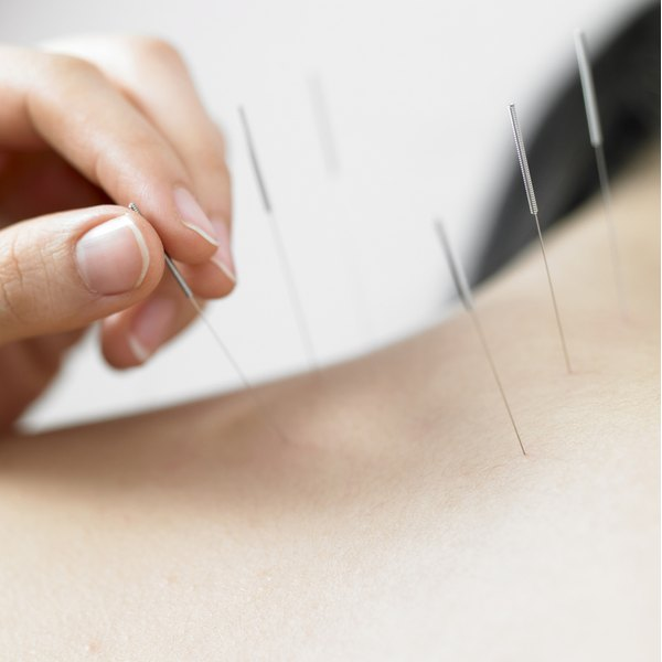 Acupuncture can be used to treat painful scar tissue.