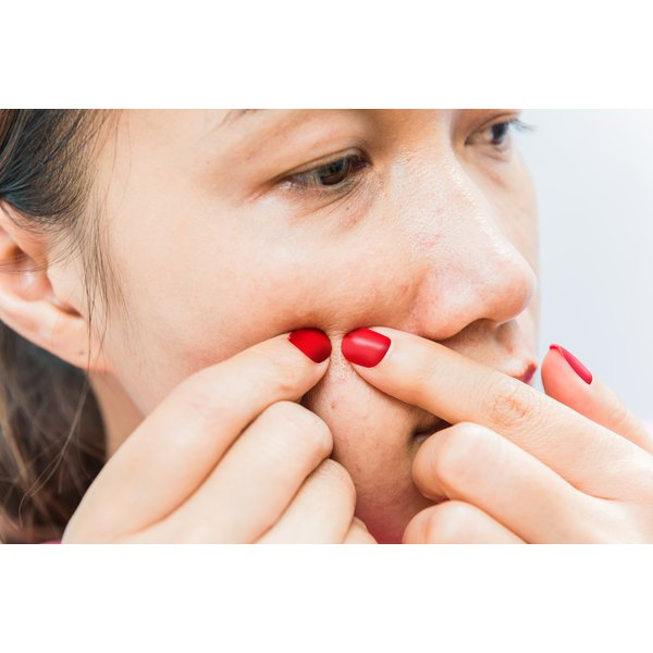 A woman is popping a pimple on her face.