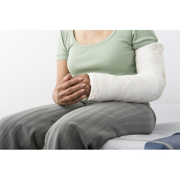 Woman with a cast on her arm