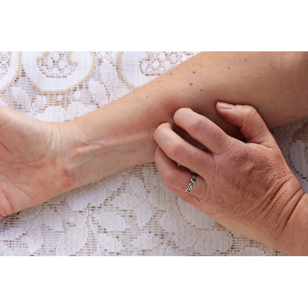A woman's arm as she scratches a rash.