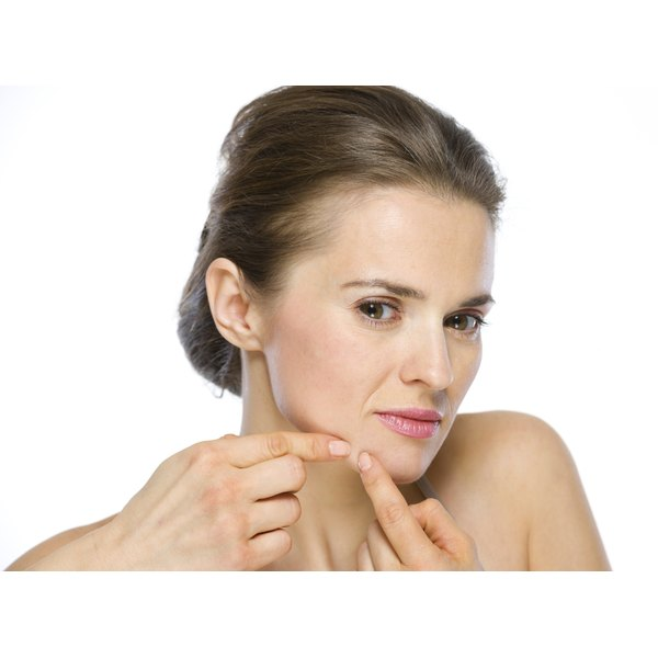 Adult acne can occur for many reasons.