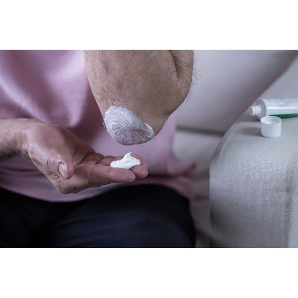 Woman putting lotion on her elbow