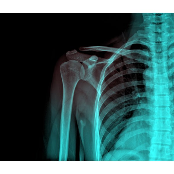 Tissue damage is associated with shoulder arthroscopy.