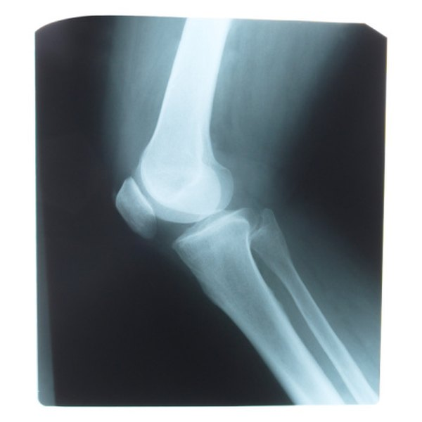 Elbow dislocations are the second most common dislocations among athletes.