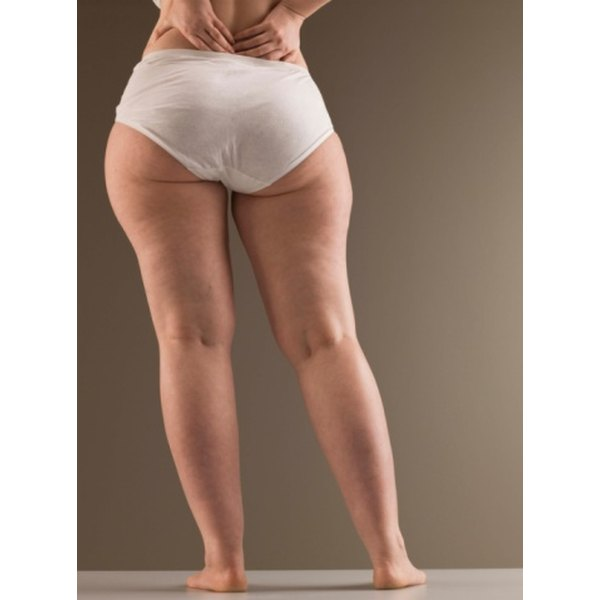 A dress or cover can help conceal cellulite on the upper thigh.