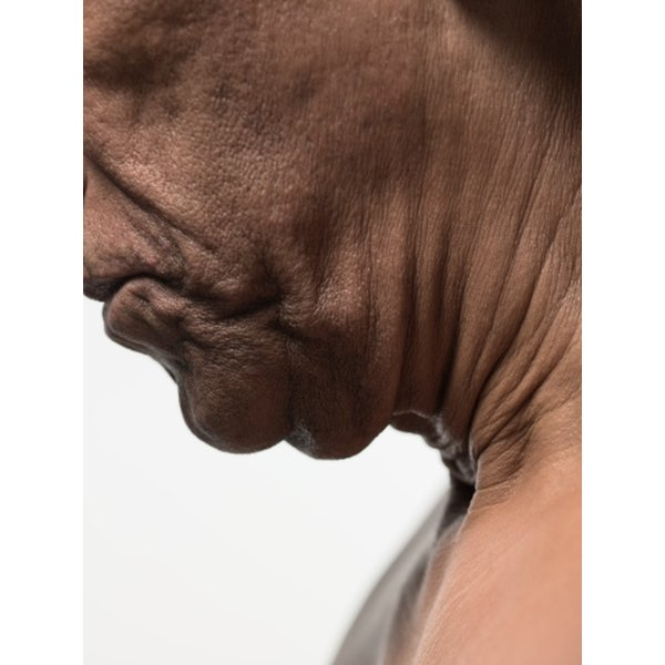 Neck wrinkles can be treated with anti-wrinkle creams.