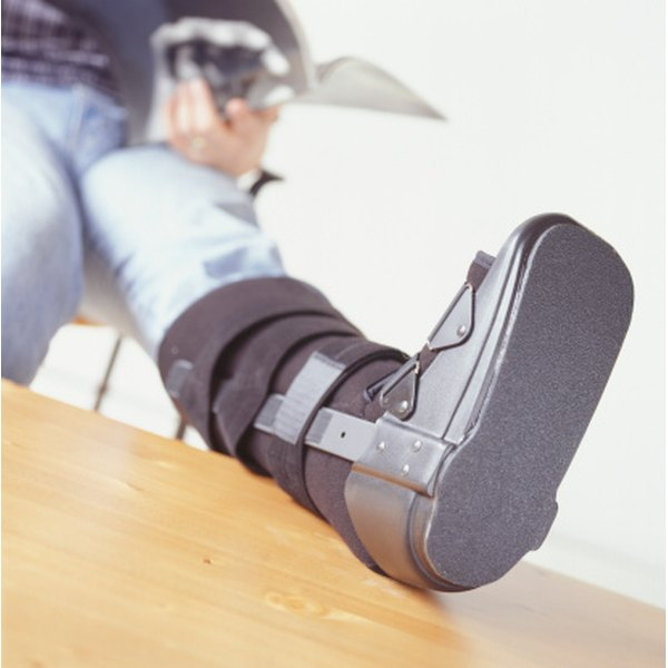 An air cast allows people with broken legs to maintain some mobility.
