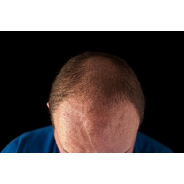 Red bumps around the hairline require daily cleansing.
