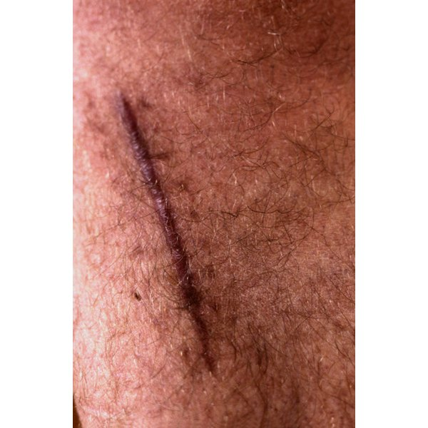 Aldara may be beneficial for the prevention of keloid scars after surgical excision.
