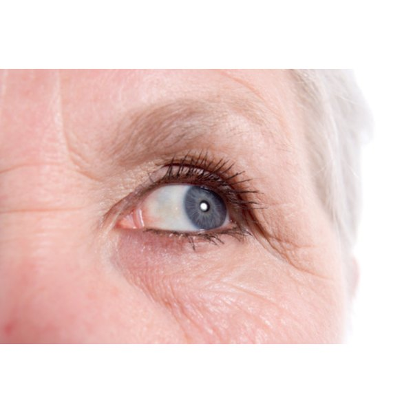 Undereye wrinkles are often age related.