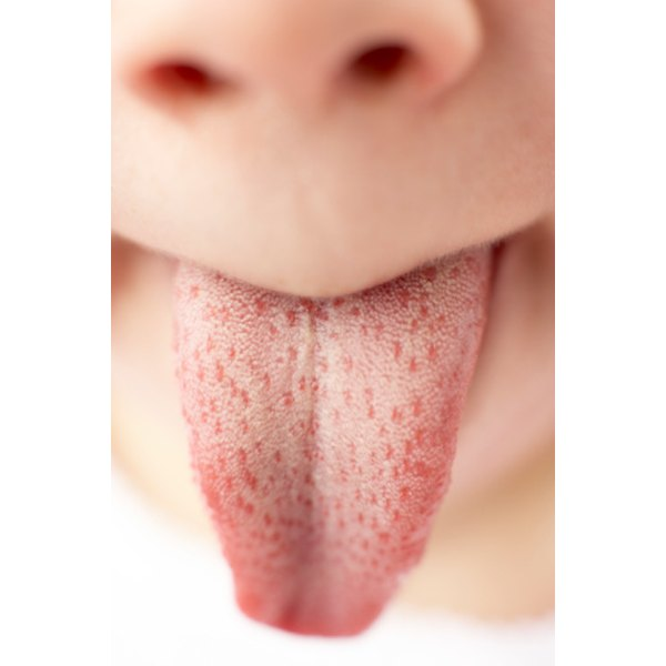 A raw case of geographic tongue will clear up on its own.