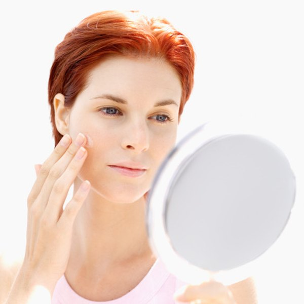 Prescription creams can soothe dry, red skin.