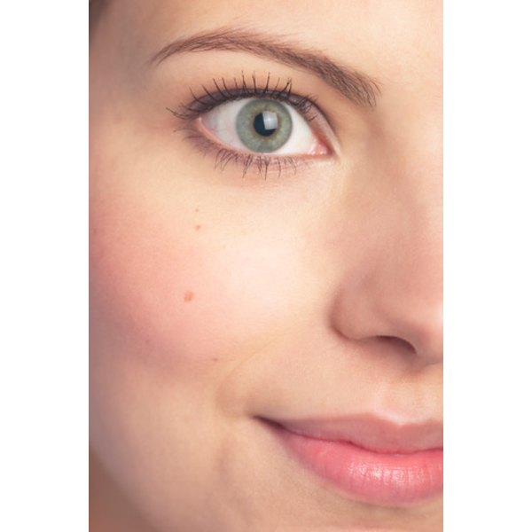 A sty can develop on eyelids which cause eye irritation, swelling and pain.