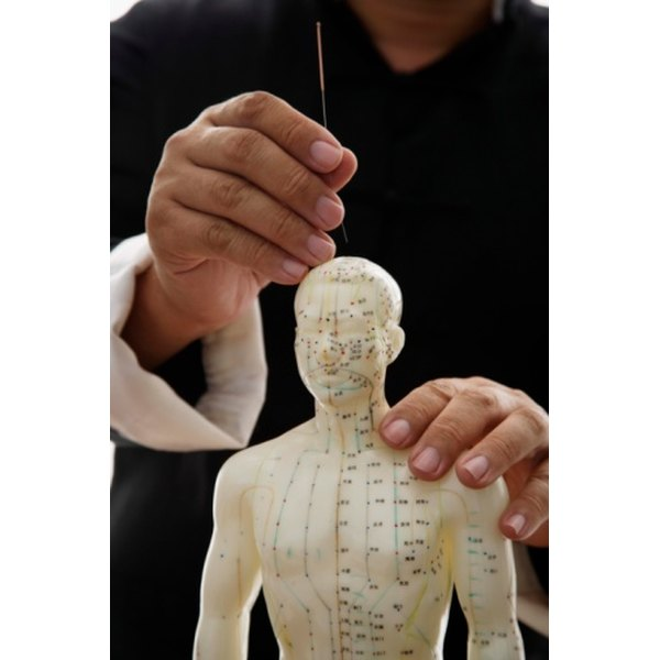 Acupuncturists balance energy channels in the body using small needles.