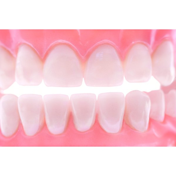 Without proper tooth care, plaque and tartar will layer and build, covering your teeth.