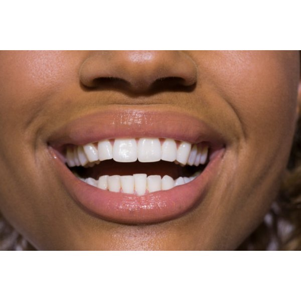 Healthy gums have a light pink color.