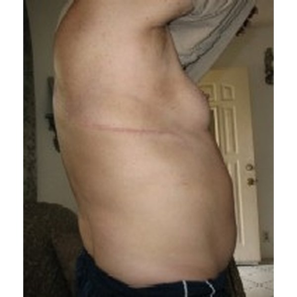 Get Rid of Surgical Scars