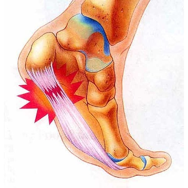How To Relieve Pain From Plantar Fasciitis Healthfully