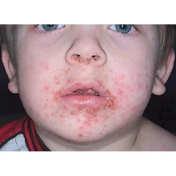 Identify Symptoms of Impetigo