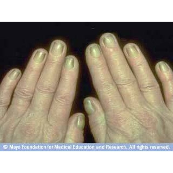 About Yellow Fingernails | Our Everyday Life
